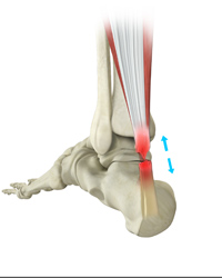 Achilles Tendon Repair (Minimally Invasive)