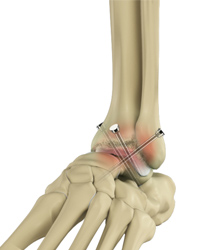 Ankle Arthrodesis/Fusion