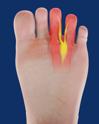 Mortons Neuroma Resection