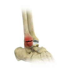 Stress Fractures of the Foot and Ankle